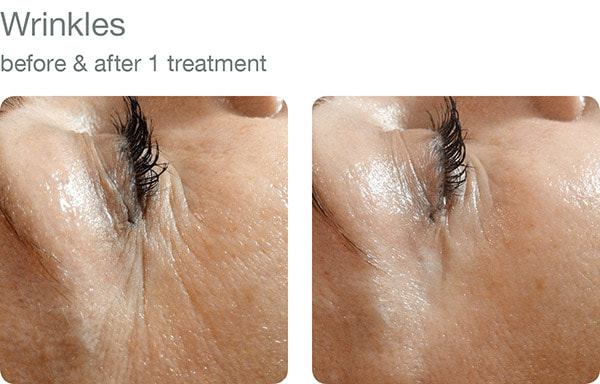 elapromed - wrinkles before and after results