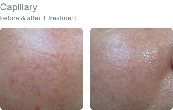 elapromed - Capillary before and after results