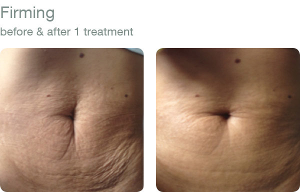elapromed - skin firming before and after results